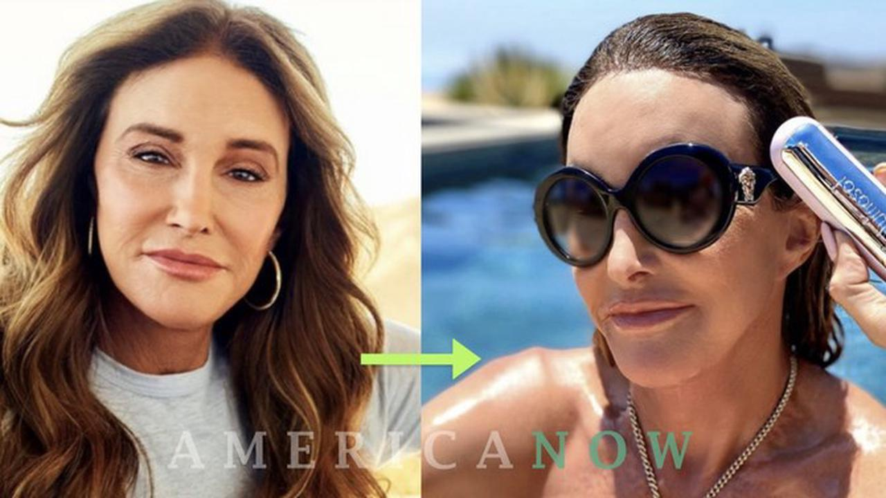 Caitlyn Jenner Topless photo 30